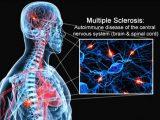 sclerosi_multipla1