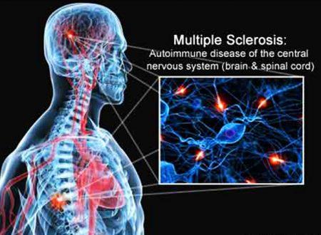 """Isolato nell'intestino un batterio contro la sclerosi multipla: verso una nuova era di """"farma-microbi"""""""
